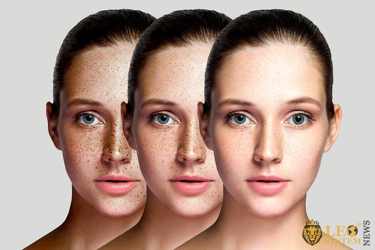 Three types of woman's face after freckle removal procedures at home